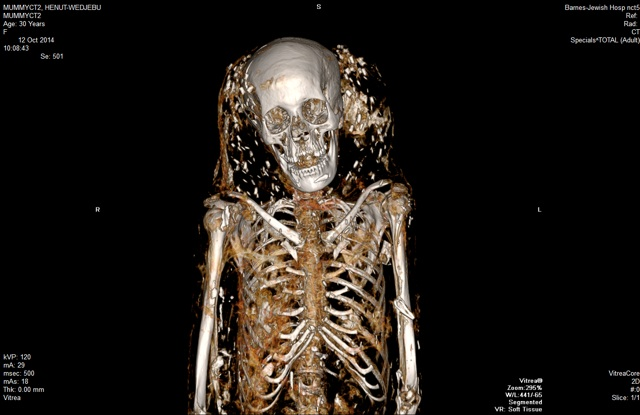 A CT scan of the mummy Henut-Wedjebu, an Egyptian noblewoman who lived during 1300 BC. The specks around her head might be beads that were part of a headdress. Henut-Wedjebu and two younger male mummies are on display at the St. Louis Art Museum. She and one of the others are on loan from the Kemper Art Museum at Washington University. Credit: Washington University Mallinckrodt Institute of Radiology