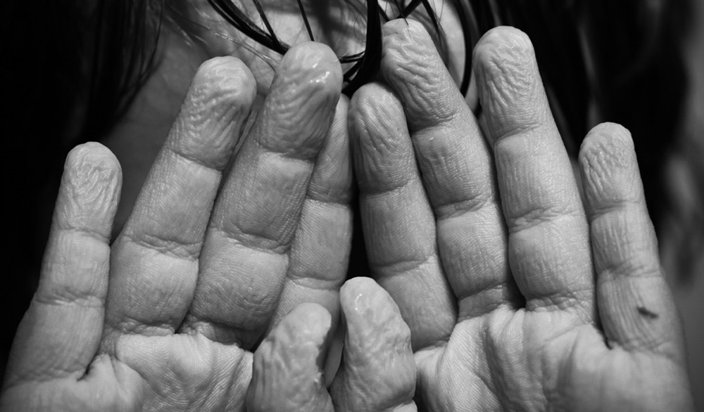 Getting a Handle on Why Fingers Wrinkle - Science Friday