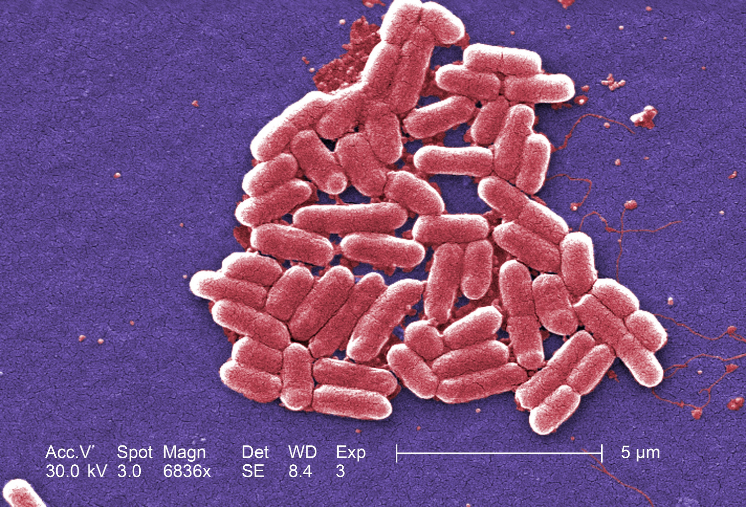 Under a magnification of 6836x, this colorized scanning electron micrograph (SEM) depicted a number of Gram-negative Escherichia coli bacteria of the strain O157:H7, which is one of hundreds of strains of this bacterium. Image by Janice Haney Carr, Centers for Disease Control and Prevention