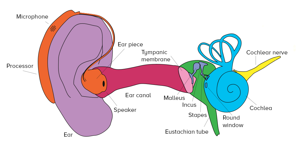 What Do Cochlear Implants And Hearing Aids Sound Like