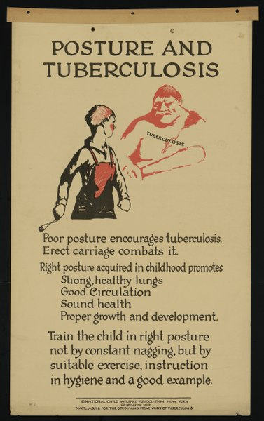 "poster of young person and large menacing ogre warning her to stand up straight because ""poor posture encourages tb"""