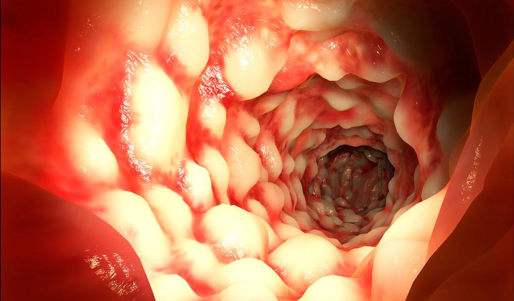 дисбактериоз влагалища фото