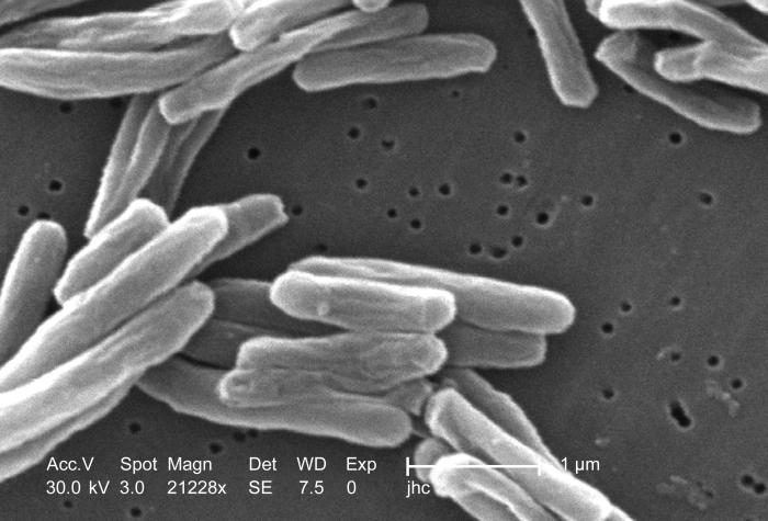 close up shot of microscopic tb bacteria