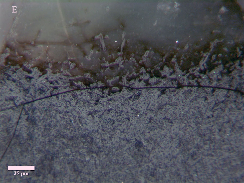 microscopic view of dark gray fungal mycelium
