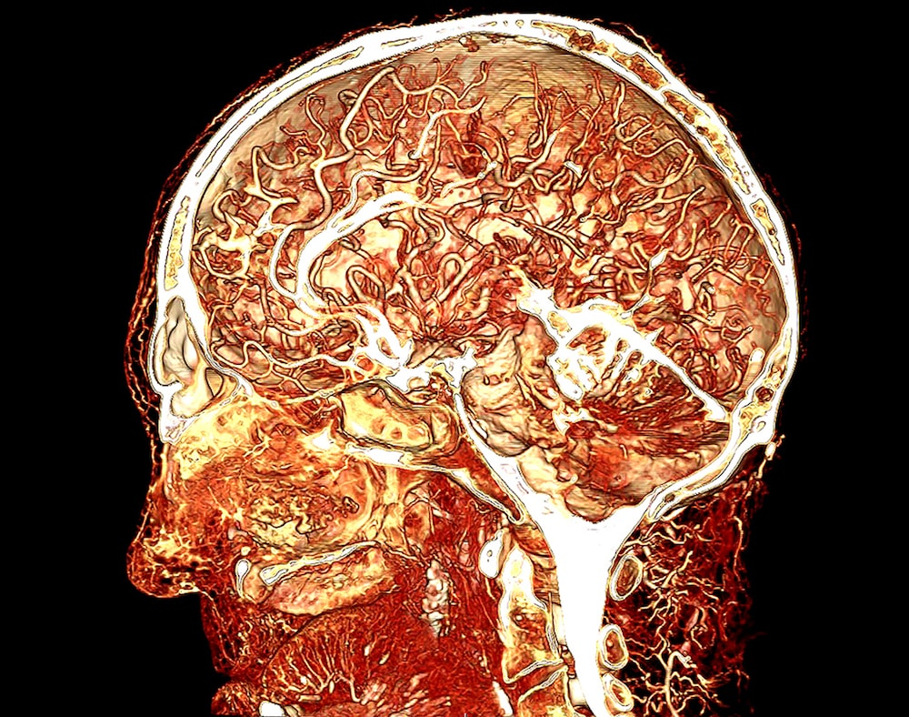 CT scan of human head and brain