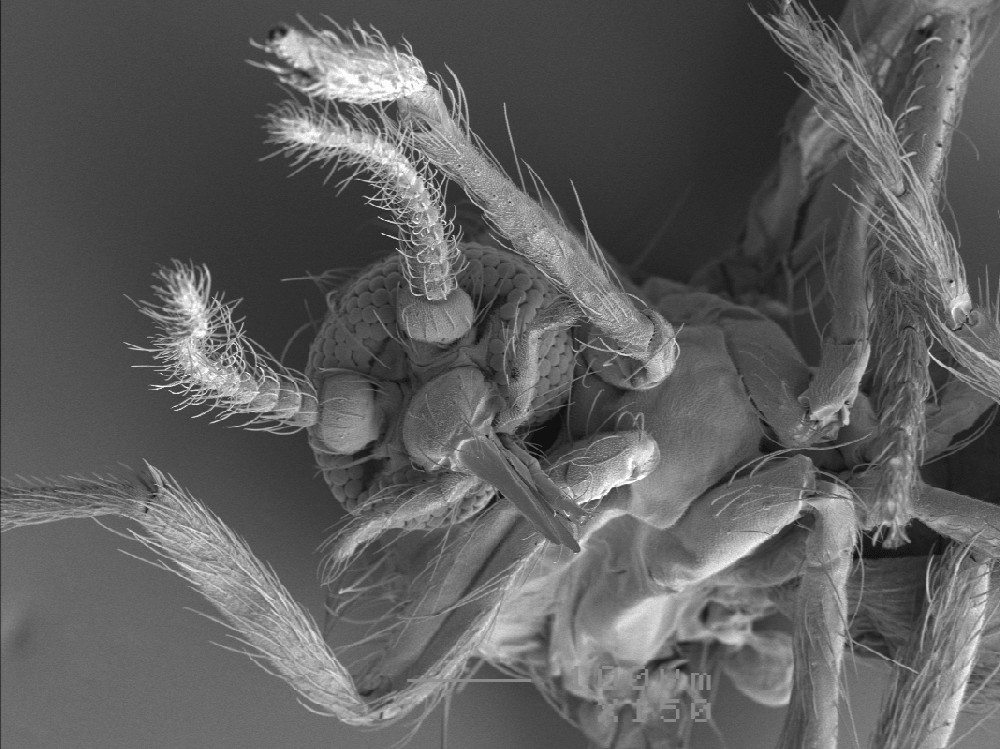 black and white image of a midge's mouth under a microscope