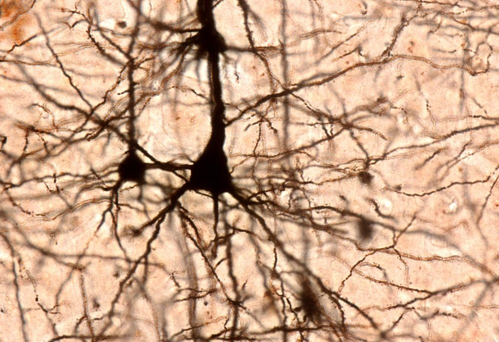 neuron stained under a microscope