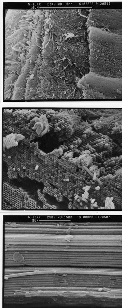 black and white electron microscope scans of the filaments