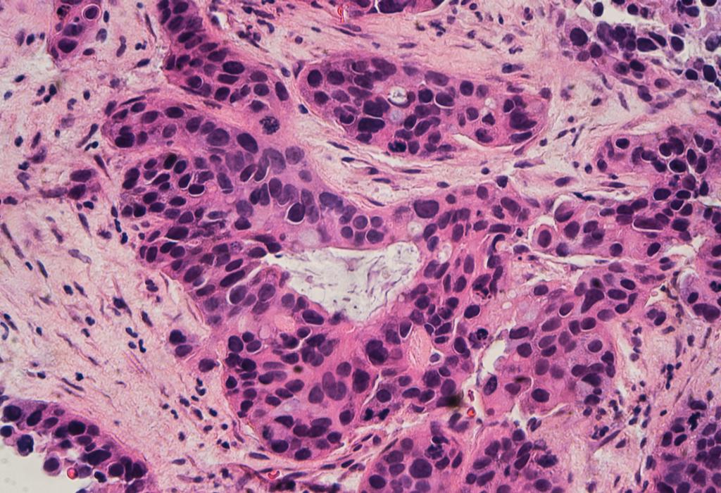 breast cancer biopsy
