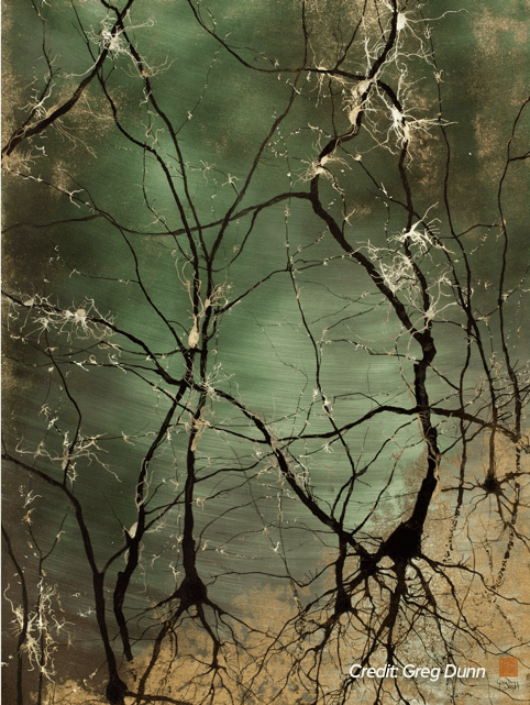 greenish landscape with what could be either branches or neurons firing in black and gold ink on top