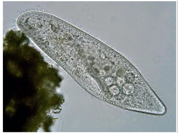 a microbe with a bunch of tiny cilia around its body. it's clear and you can see its internal organs