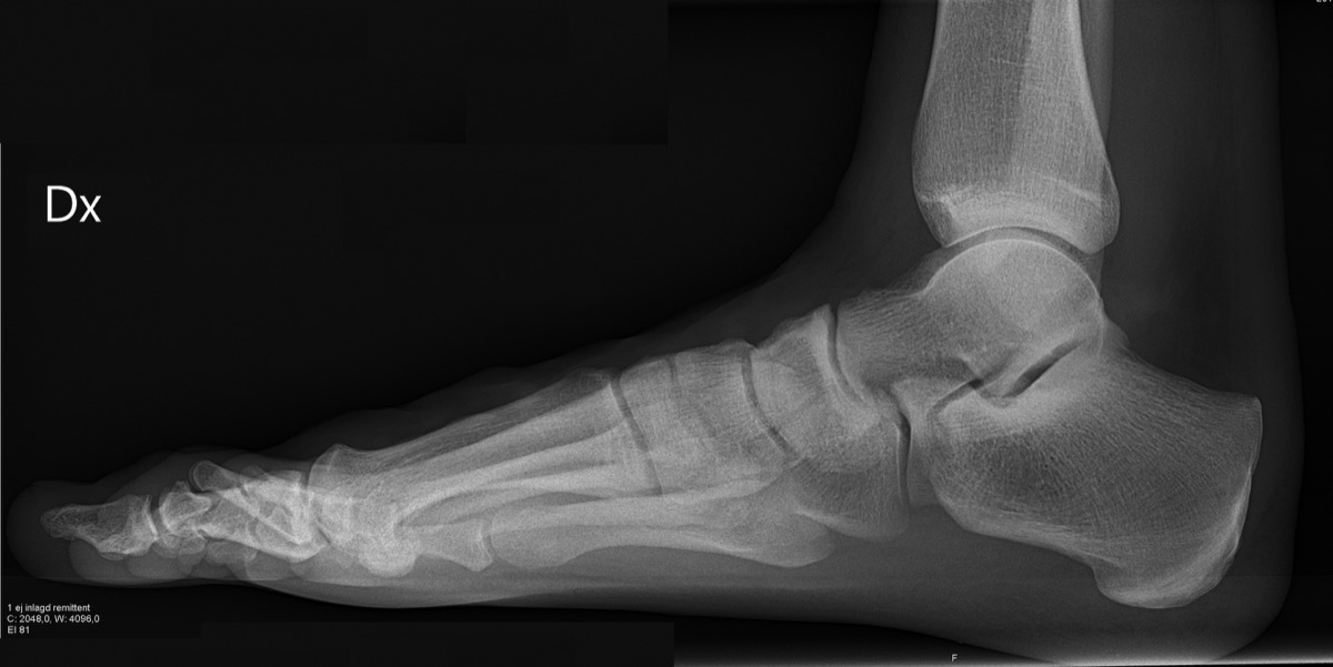 a black and white x-ray of a foot and ankle. you can see where the bones meet and where the joints are