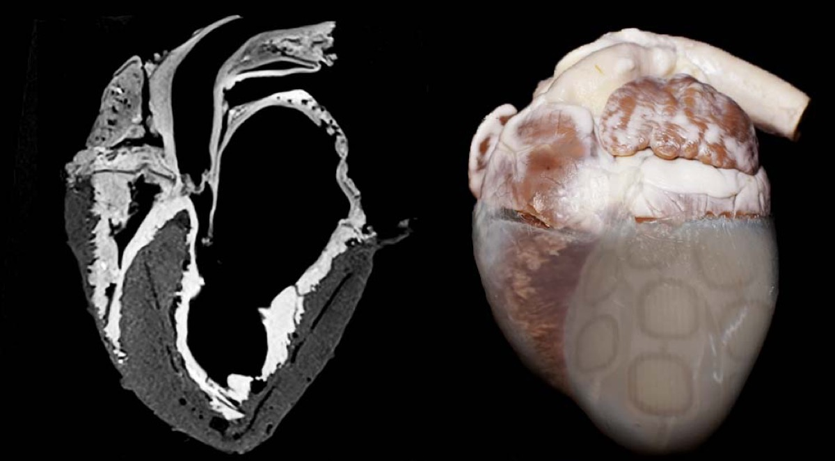 two hearts. on the left is an x-ray version that reveals the valves. on the right is a color photo of the heart, with some patchwork on the right corner