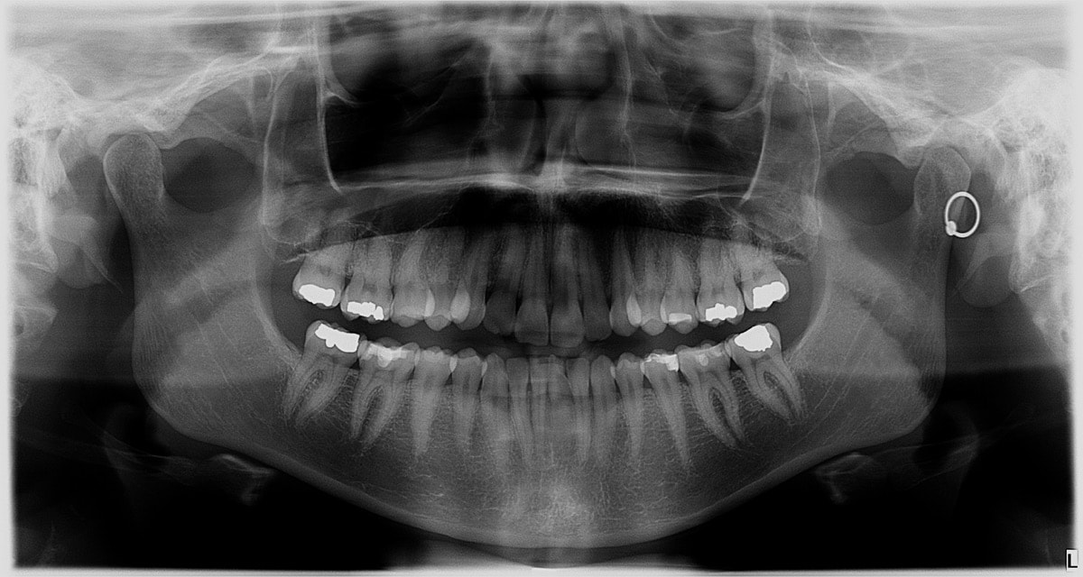 a full panorama x-ray of a person's mouth which reveals teeth, roots, and fillings