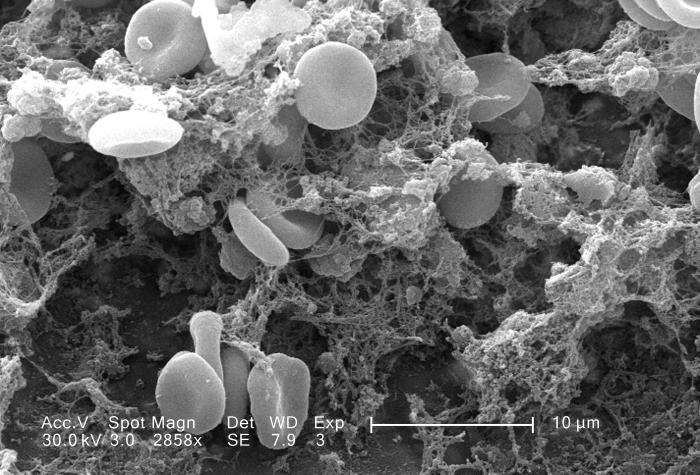 an electron microscope image of blood cells