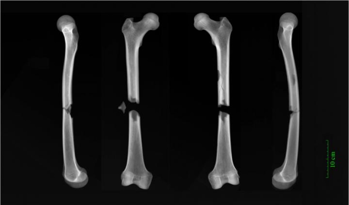 black and white image of x-ray scans of femur bones in different views. each of the bones have a fracture or are broken in the middle