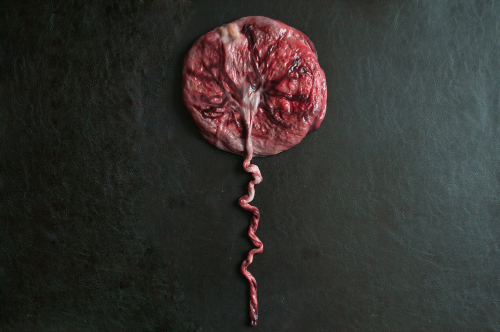 a pancake-shaped placenta on a black background with the umbilical cord trailing out of the picture