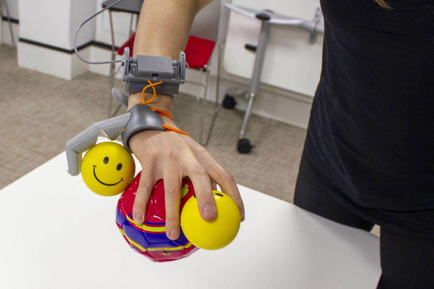 a white arm with the additional thumb prosthetic attached, allowing the user to carry a large and small ball in their main hand and holding an additional small ball thanks to the extra thumb
